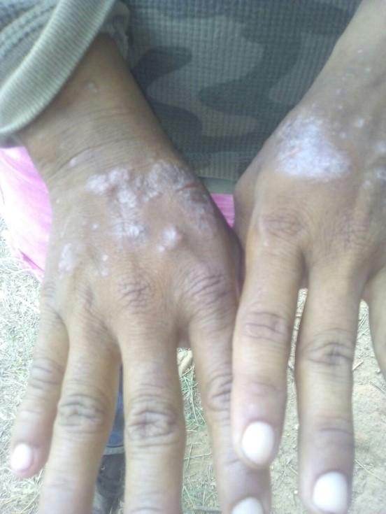 Honduras: Después de temporada a soportar las enfermedades.
